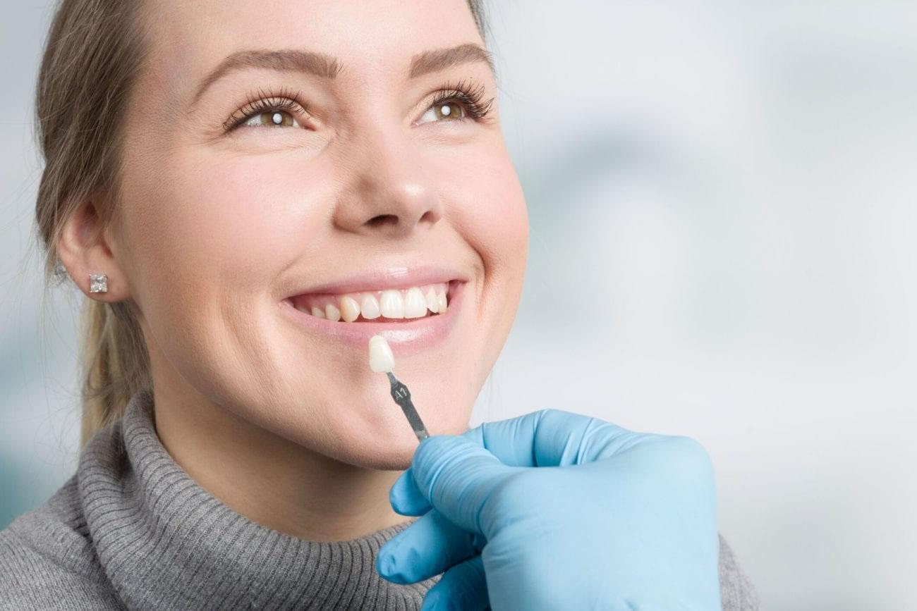O que é a lente de contato dental?